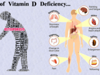 Can Low Levels of Vitamin D Cause Serious Health Concerns?