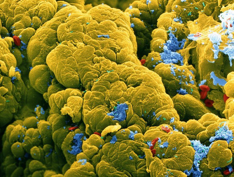 Gut Microbiomes And Cancer