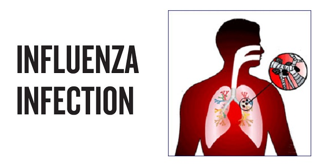 Influenza Infection