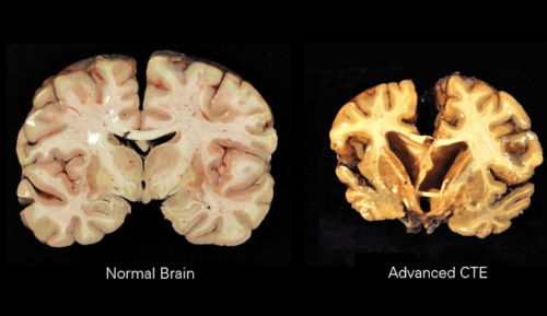 CTE Brain Disease: Its Symptoms, Causes & Treatment