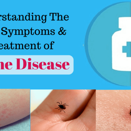 How to Know You Have Lyme Disease: Signs, Symptoms & Its Treatment