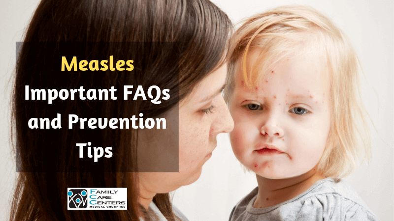 measles important faqs and prevention tips